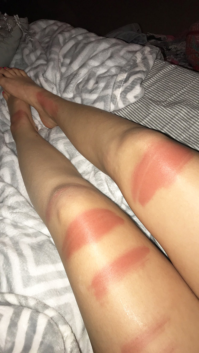 These People Wore Ripped Jeans In The Sun, And Now Their Legs Look Like Grilled Hotdogs